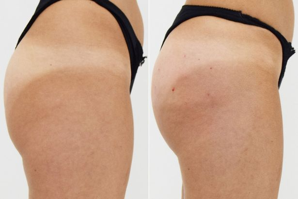 Bum-Lift-Side-Before-After