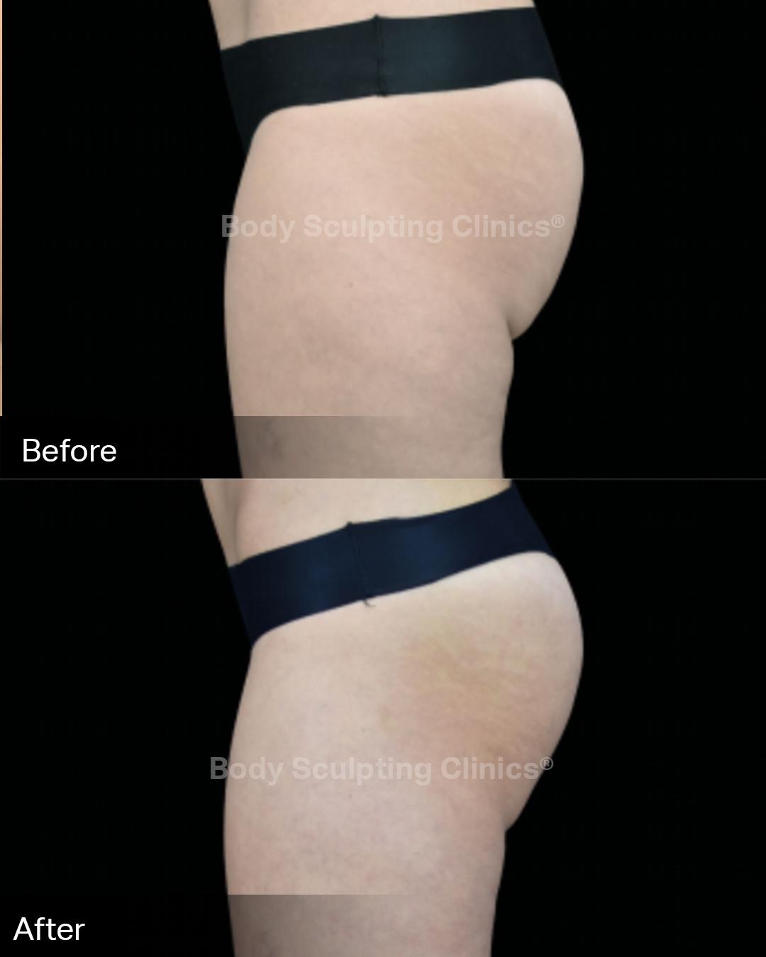 emsculpt-embody-buttocks-2