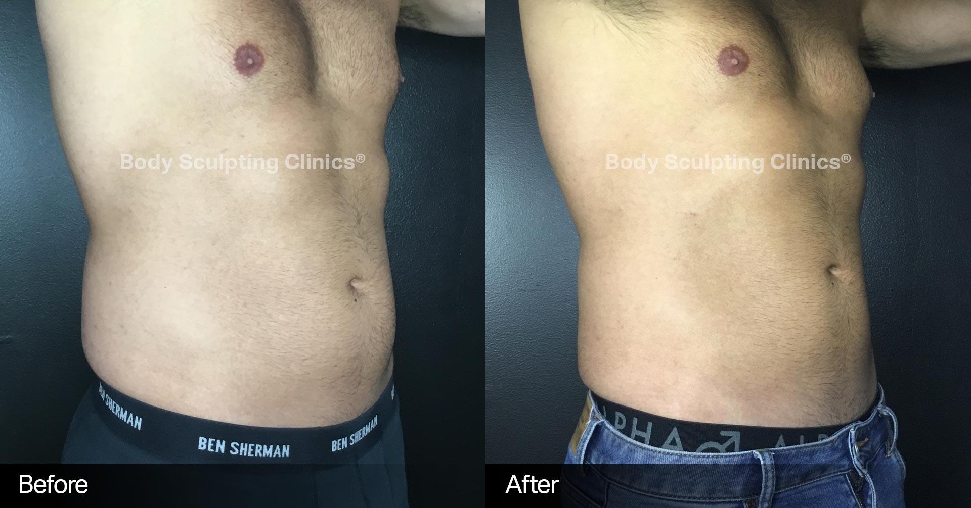 cryo-abdomen-love-handles-body-sculpting-clinics-5