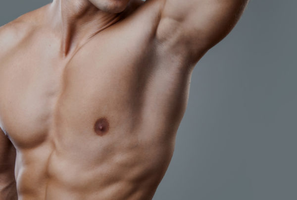 excessive-sweating-body-sculpting-clinics-7